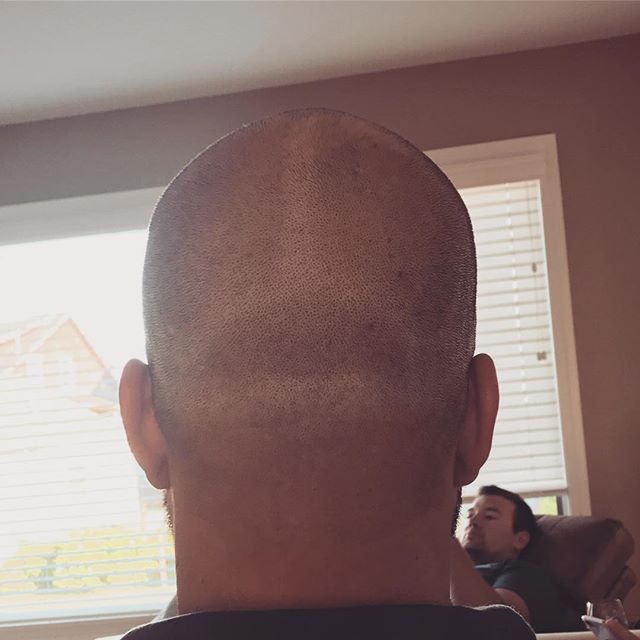 #headthong #baldguyproblems
